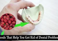 Foods That Help You Get Rid of Dental Problems